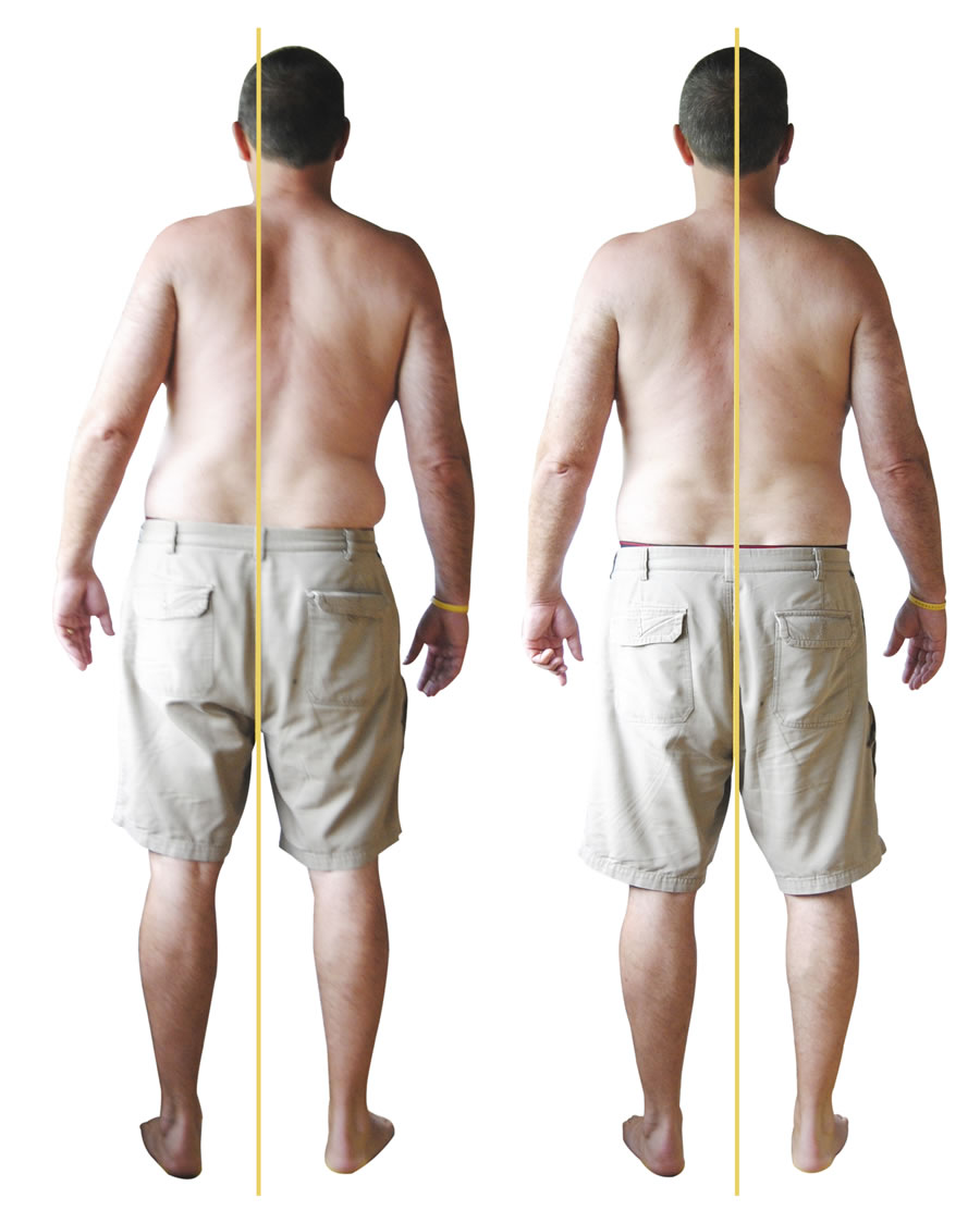 Back Strain client posterior before and after_zpsyipiwwp2